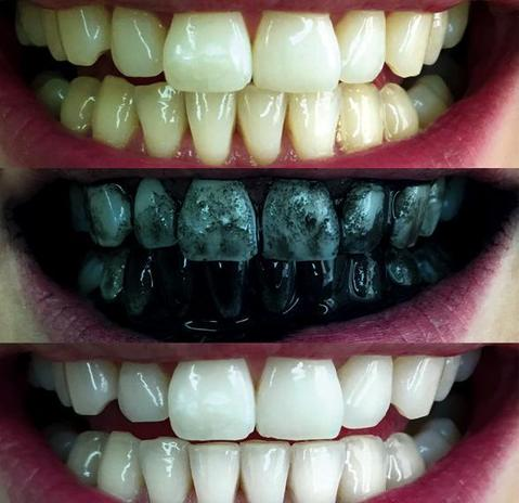 procoal-activated-charcoal-teeth-whitening-powder-31396832010_large